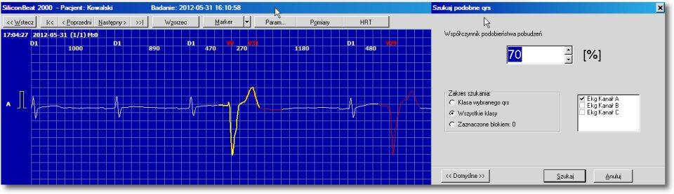 Ekran 1. Łatwa reanaliza za pomocą funkcji błyskawicznego wyszukiwania wskazanego QRS w całym badaniu.